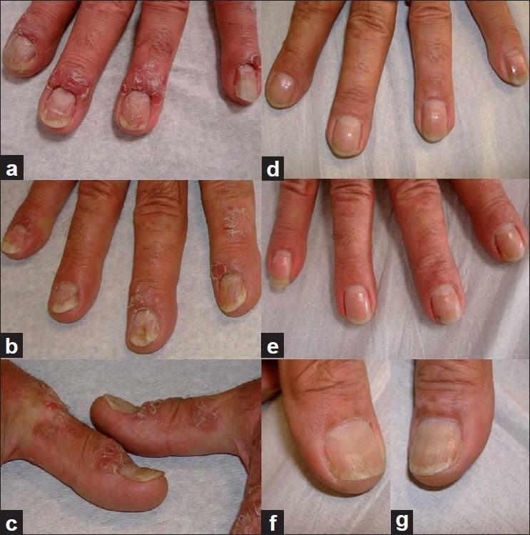 napsi nail psoriasis)