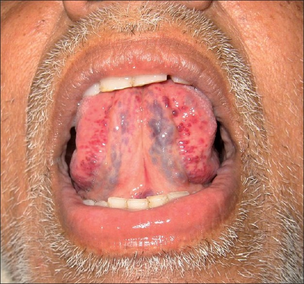 caviarul varicose laminaria din varicoseza