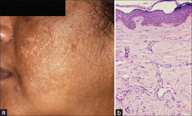 Hpv treatment garlic - Confluent reticulated papillomatosis ijdvl