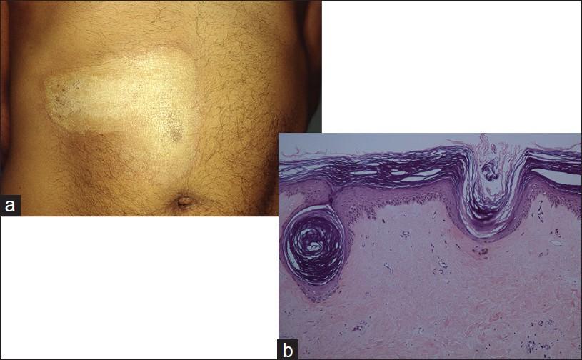 confluent and reticulated papillomatosis ijdvl