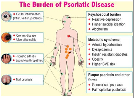 psoriasis and comorbid diseases part i epidemiology)