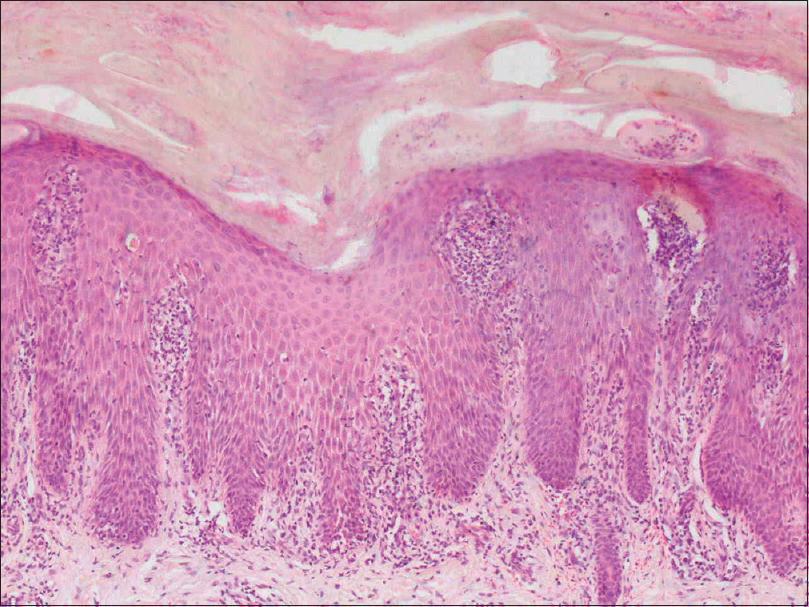palmoplantar pustular psoriasis histology