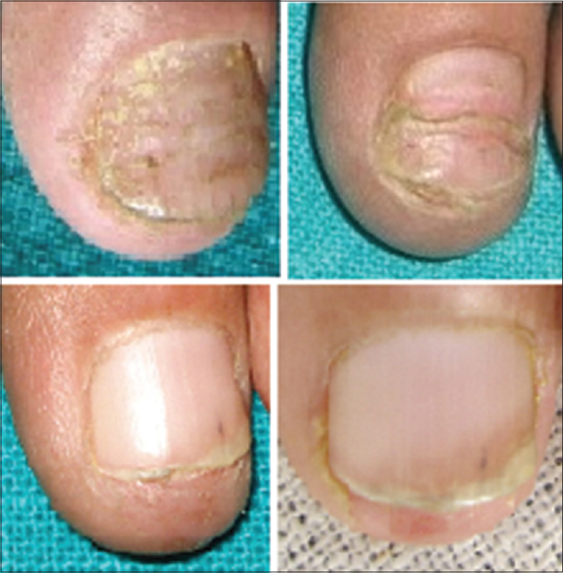 corticosteroids for nail psoriasis